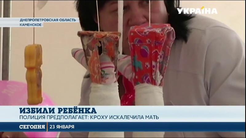 Сломанные ноги, бедра и ребра мать избила свою 11-месячную малышку