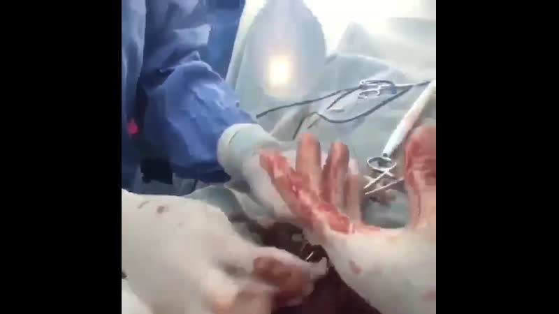 Протезирование яичка