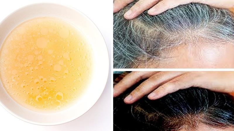 Mische einfach diese 3 Zutaten zusammen - Auf das Haar auftragen, um graues Haar zu entfernen!