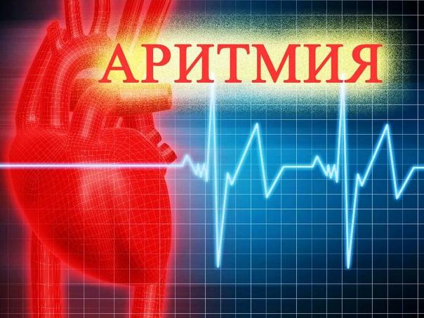 АРИТМИЯ--БОЛЕЗНЬ СЕРДЦА,А ЛЕЧИТЬ НУЖНО НЕРВЫ Признаки аритмии - перебои, замирание сердца, резкое хаотическое сердцебиение. Многие виды аритмии не представляют угрозы для человека, но