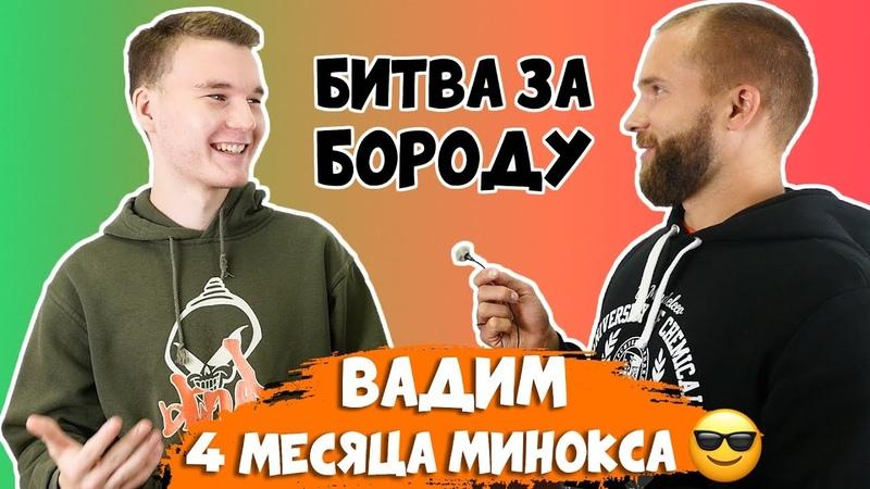 Вадим - результаты миноксидила для бороды 4 месяца - БИТВА ЗА БОРОДУ