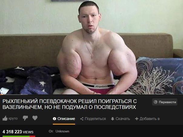 Хирурги рассказали об операции Кирилла Терешина. И вот...