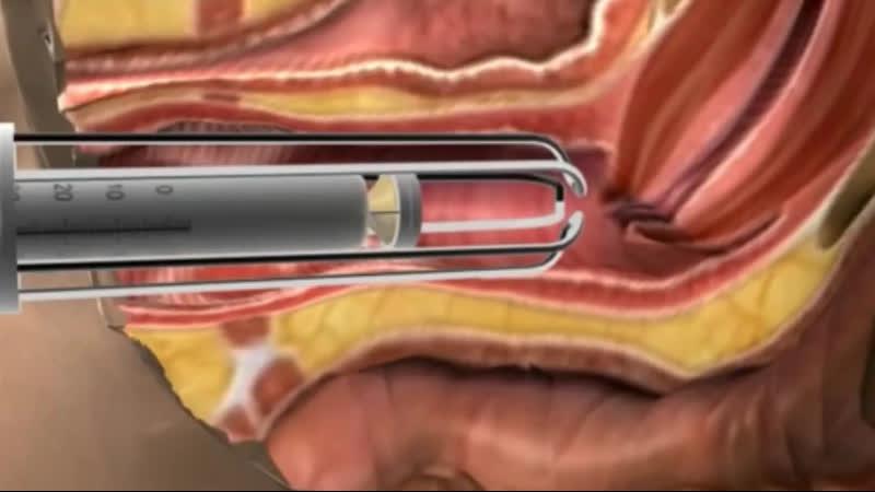 Вагинальное лазерное омоложение