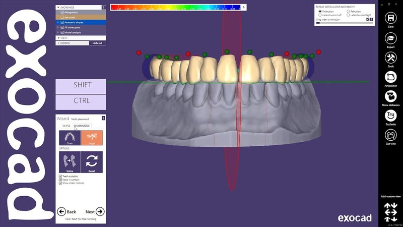 Exocad Quick Guide Designing a single arch denture