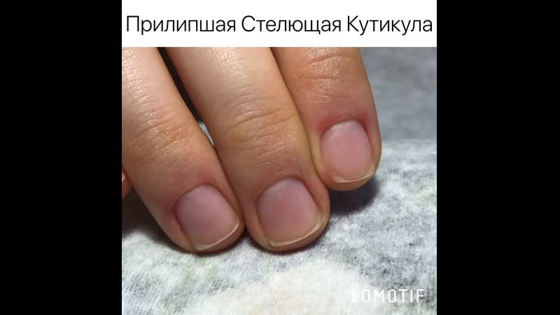 🔴Прилипшая Стелющая Кутикула🔴 __ ♥️Studio By Mariya Iskustnica Nail™️
