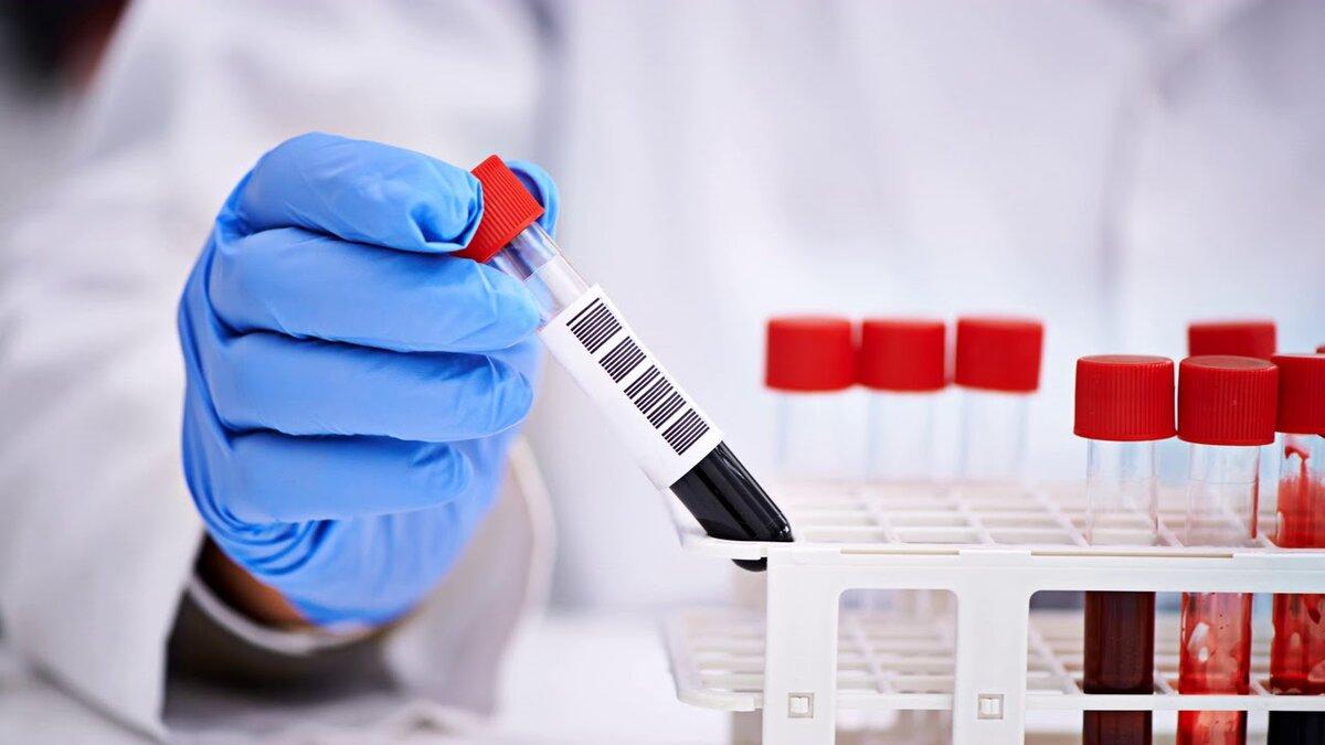 Курянам рассказали о порядке проведения анализа на коронавирус